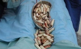 Cocaine removed from the stomach of a drug 'mule'