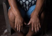 Una ambientalista brasileña muestra las lesiones que, según ella, son el resultado de la contaminación del agua en Barcarena, Brasil. Imagen cortesía de Global Witness